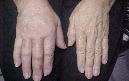 Doentes com síndrome de dor regional complexa menosprezados em Portugal